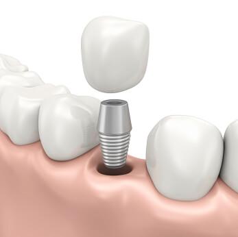 Implant Dentaire Montréal