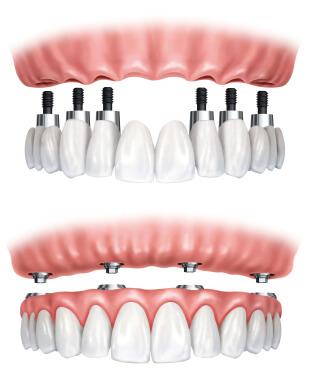 Implant Dentaire avec Prothese Fixe Montréal