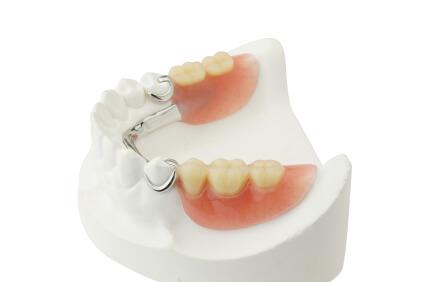 Prothèse Partielle Dentaire à Montreal