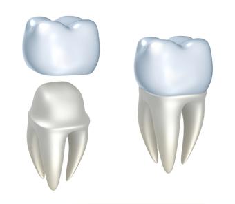 Service couronne dentaire