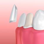 Facettes de Porcelaine Dentaire à Montreal