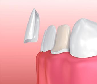 Facettes de porcelaine