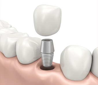 Service implant dentaire
