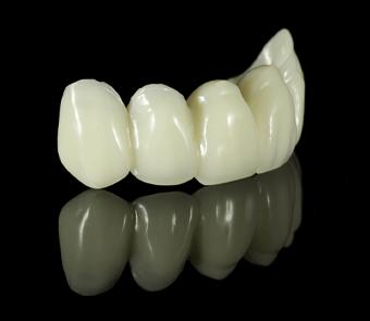 Service pont dentaire