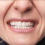 Restauration Cosmetique Dentaire à Montreal