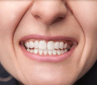 Restauration esthétique dentaire