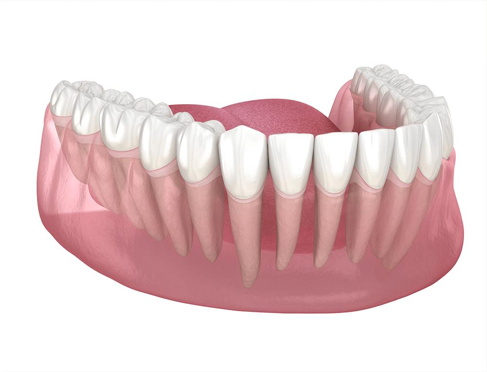 Dentiste Montreal - Soins Parodontaux