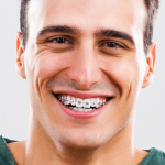 Soins Orthodontiques à Montreal