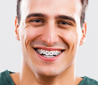 Dentiste Montreal - Soins Orthodontiques